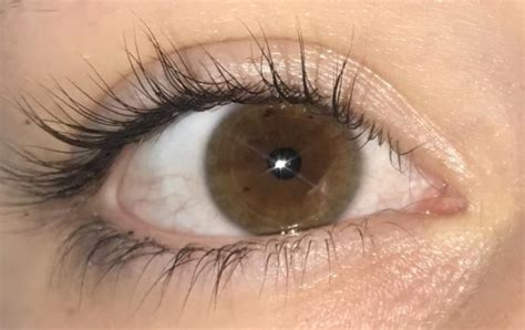 Would u say I have green on the outer ring of my eye? I