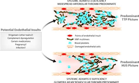 Is There a Shared Pathophysiology for Thrombotic