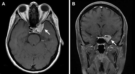 Detection of inferolateral trunk syndrome by