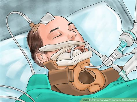 How to Survive Traumatic Brain Injury: 11 Steps (with